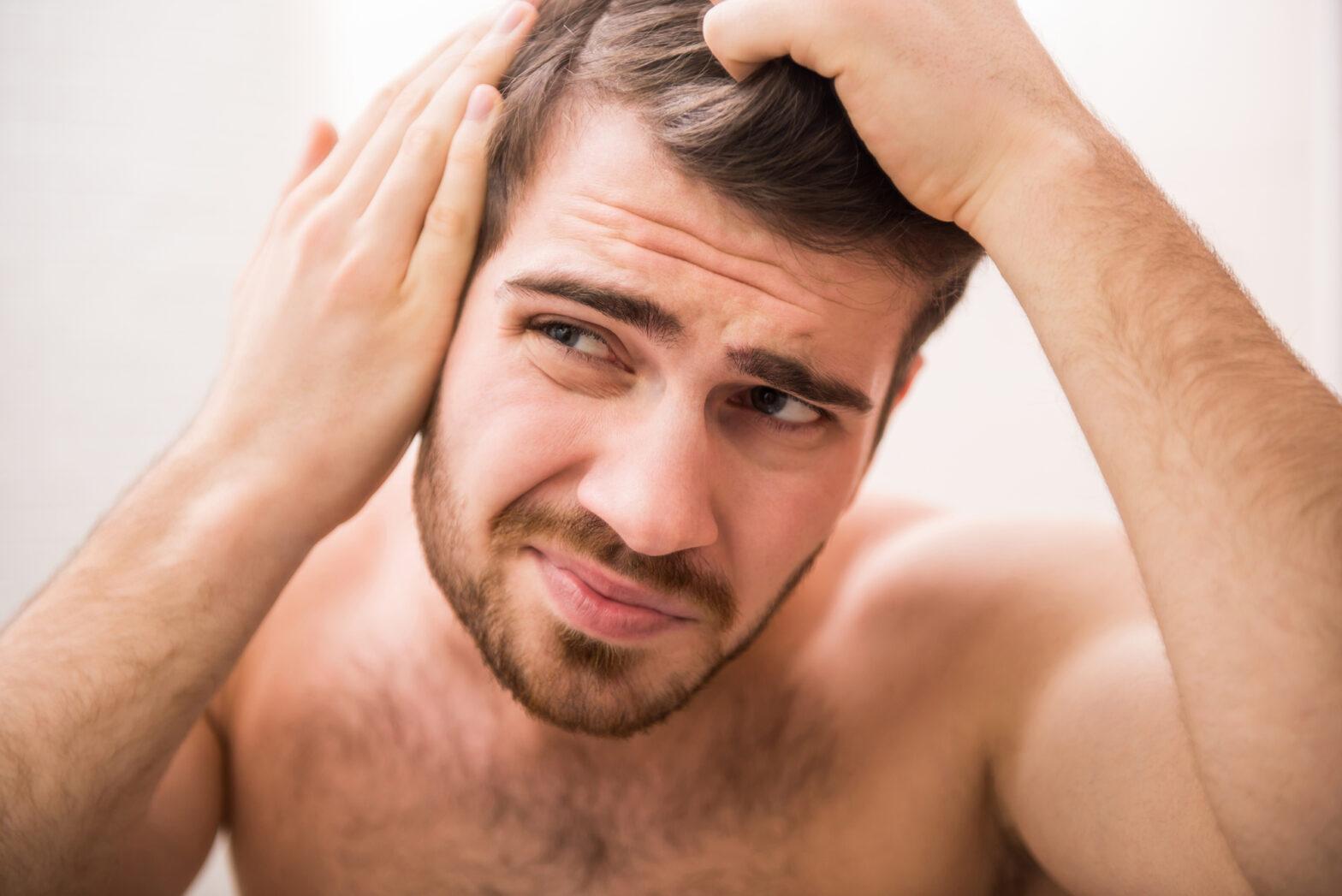 Wypadanie włosów u mężczyzn – jak z tym wygrać?